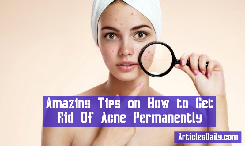 Amazing Tips on How to Get Rid Of Acne Permanently